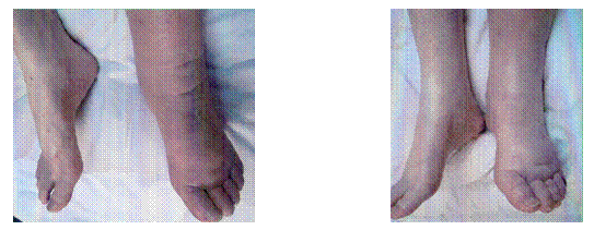 Lower Extremity Lymphedema 2